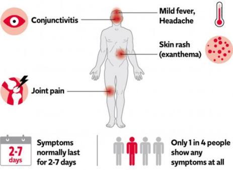 zika symptoms.jpg